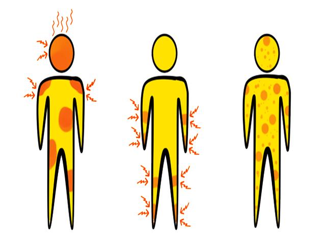 symptoms 1351005 640 Mystery Fever Killing Children In India